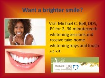 2 - 30 minute teeth whitening and take home whitening and touch up kits